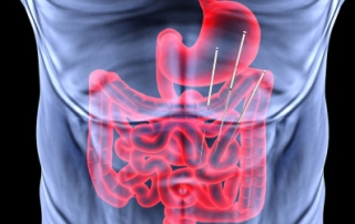 Gastroesophageal Reflux | Jade Acupuncture Treatments